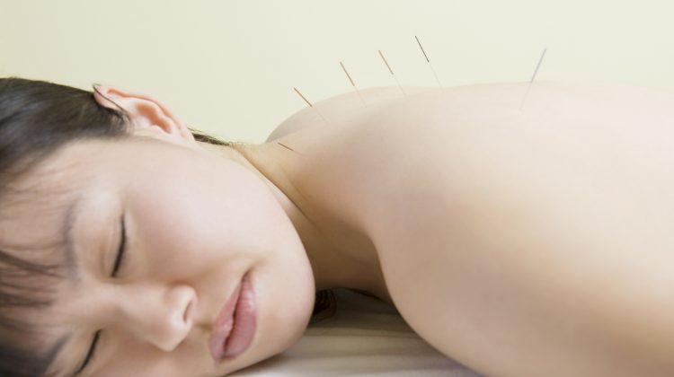 vrouw ondergaat TENS na acupunctuur